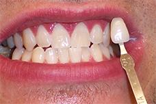 Cosmetic Dentist Brighton
